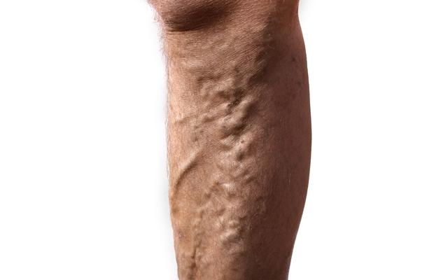 Why do men overlook their varicose veins? (Photo: Audie/Shutterstock)