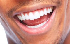 What You Need To Know From The Pros About Teeth Whitening