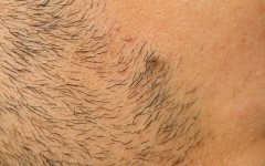Above: Dealing with ingrown hairs